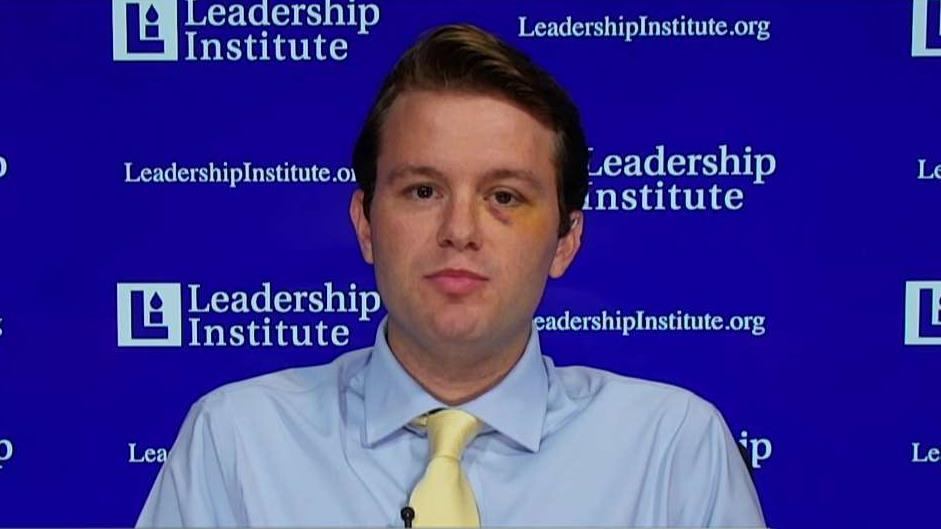 Leadership Institute's Hayden Williams on the incident when he was attack on the campus of the University of California, Berkeley.