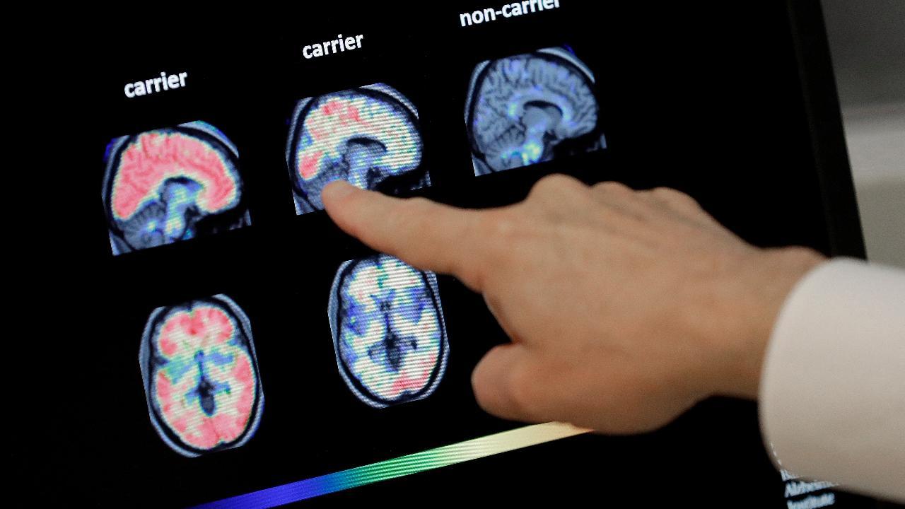 Fox News medical correspondent Marc Siegel discusses Biogen's revival of its Alzheimer's medication.